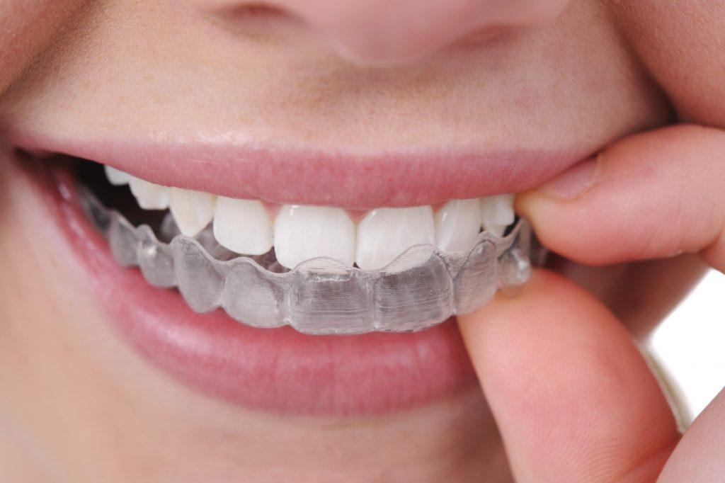 Invisalign - Bogor Dental Center