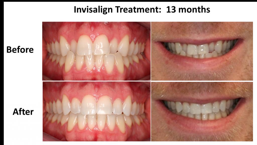 Before After Invisalign - Bogor Dental Center (2)