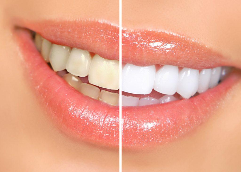 Pemutihan Gigi | Bogor Dental Center