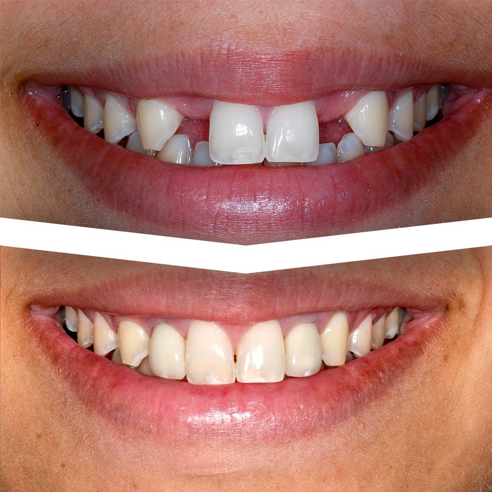 before after impan gigi - Bogor Dental Center